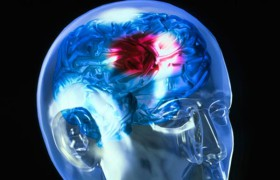 Инсульт чаще грозит депрессивным людям