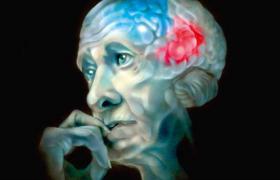 Болезнь Альцгеймера щадит активных