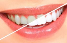 Плюсы и минусы профессионального отбеливания зубов
