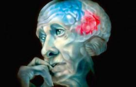 Как избежать деменции