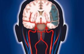 Витамин B снизит риск развития инсульта