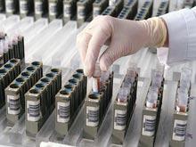 Медики разработали уникальный тест, выявляющий болезнь Альцгеймера