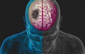 Ухудшение качества сна у больных пожилого возраста – индикатор риска развития инсульта