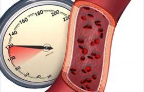 При гипертонии ускоряется старение головного мозга