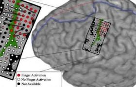 Новая технология поможет управлять отдельными пальцами протеза