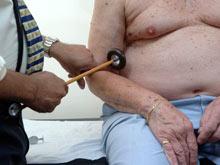 Специалисты нашли новые гены, связанные с инсультом