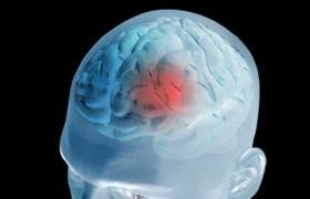 Ученые: пропуск завтрака увеличивает риск кровоизлияния в мозг на 36%