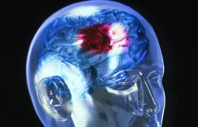 Продолжительность сна может сказать о риске инсульта