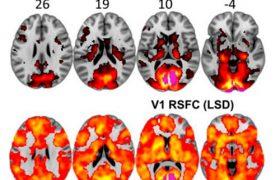 Мозг человека под ЛСД изучили с помощью МРТ