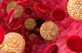 Уровень холестерина регулирует мозг