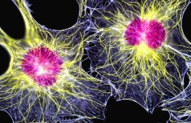 Стволовые клетки пульпы против инсульта