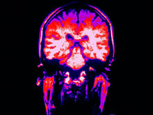 Новый метод позволит «сфотографировать» активность всего мозга