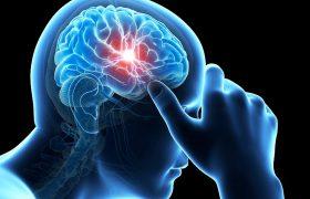 Мигрень повышает риск ишемического инсульта