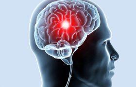 Витамин В9 снижает риск инсульта