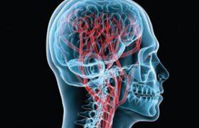ТОП-5 рецептов очищения сосудов головного мозга