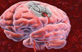 Ученые установили, что помогает восстановиться после инсульта