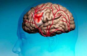 Создан шлем, позволяющий диагностировать инсульт