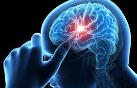 Мини инсульт может привести к потере зрения