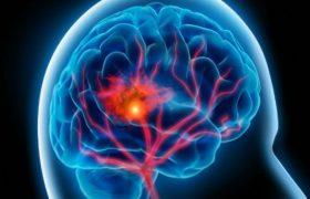 Кровоток головного мозга зависит от физической активности, выяснили ученые