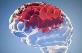 Медики смогут «выключить» ген инсульта