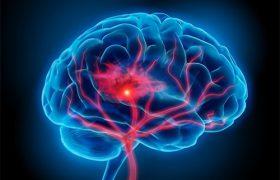 Ученые нашли 4 биомаркера инсульта