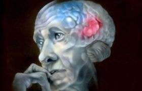 Аритмия связана с болезнью Альцгеймера