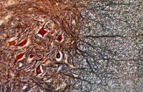 Нервные клетки могут восстанавливаться, показало исследование
