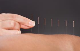 Иглоукалывание облегчает мигреневые боли
