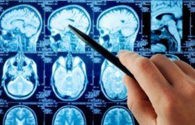 Ученые определили главные терапевтические участки мозга