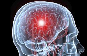 Иммунитет способен защитить мозг от инсульта