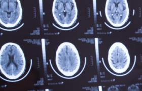 Два биомаркера указывают на повышенный риск асимптомного инсульта