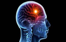 Высокодозная терапия ГЭРБ ингибиторами протонного насоса как фактор риска развития ишемического инсульта