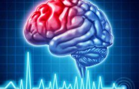 Открытие: вероятность инсульта зависит от года рождения