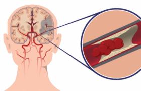 Питание при ишемическом инсульте