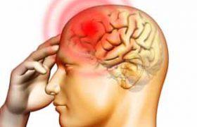 Мучительная мигрень