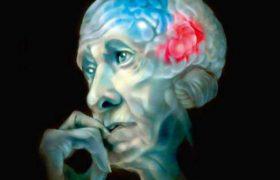 Станет ли прорывом в лечении болезни Альцгеймера стимуляция головного мозга мерцающим светом?