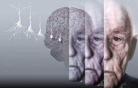 Лечение гормонами может предотвратить болезнь Альцгеймера