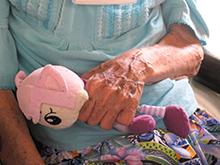 Новый препарат от болезни Альцгеймера улучшает память и продлевает жизнь