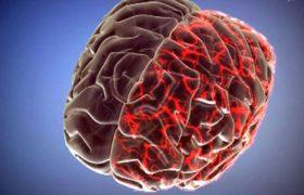 Что может вызвать мигрень