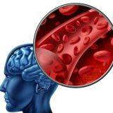 Микроинсульт приводит к развитию болезни Паркинсона