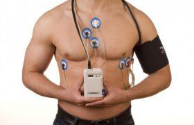 Как подготовиться к холтеровскому мониторингу сердца