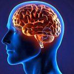 Исследование: инсульт молодеет с каждым годом