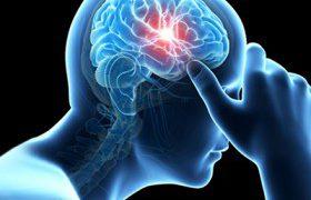 Мифы и факты об инсульте