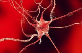 Пациенты с расстройствами психики чаще страдают от инсультов