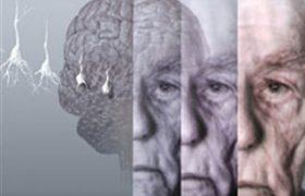 Американские ученые нашли ген, влияющий на старение мозга