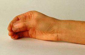 Ягоды защищают от болезни Паркинсона
