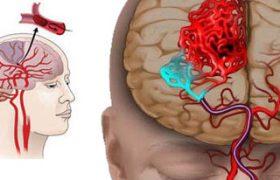 Болезни почек повышают риск возникновения инсульта