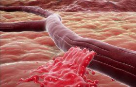 Избыточный вес повышает риск инсульта и приводит к преждевременному старению мозга