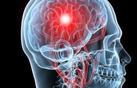 Инсульт головного мозга в молодом возрасте