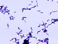 Генетики: у болезни Альцгеймера бактериальная природа